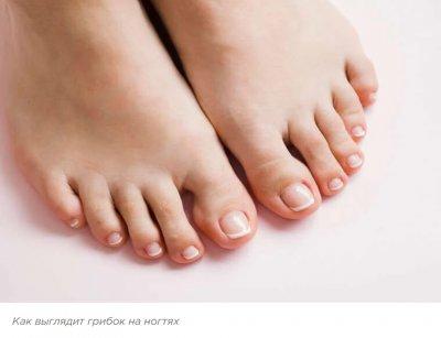 Грибок на ногте ноги и его лечение
